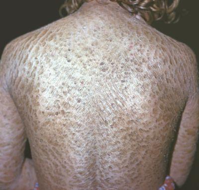 шелушение кожи после аллергии