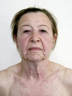 мутации тела фото