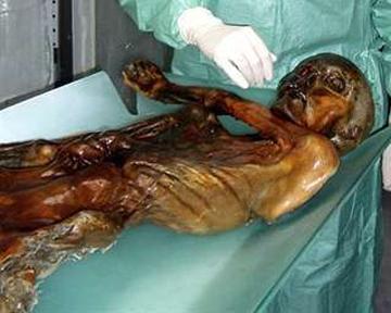 мед паразитов в организме человека